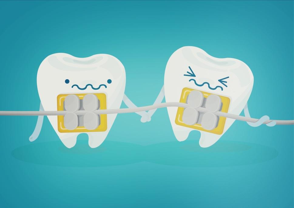 Braces Teeth
